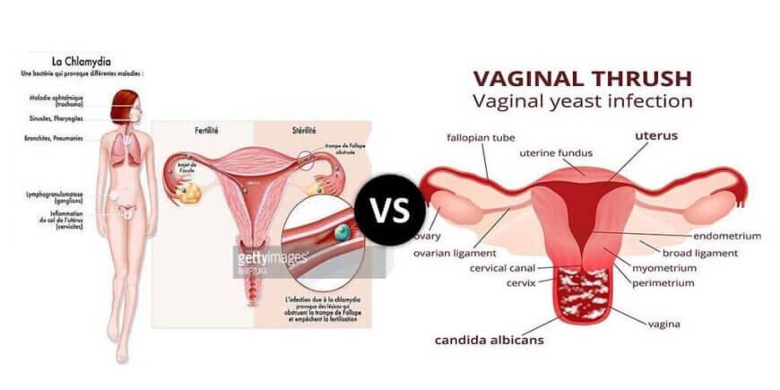 chlamydia infection vs yeast infection