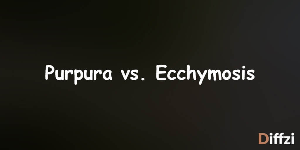 Purpura vs. Ecchymosis