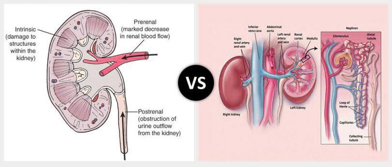 acute renal failure vs chronic renal failure e1549055532124