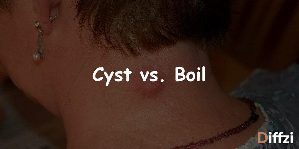 Cyst vs. Boil