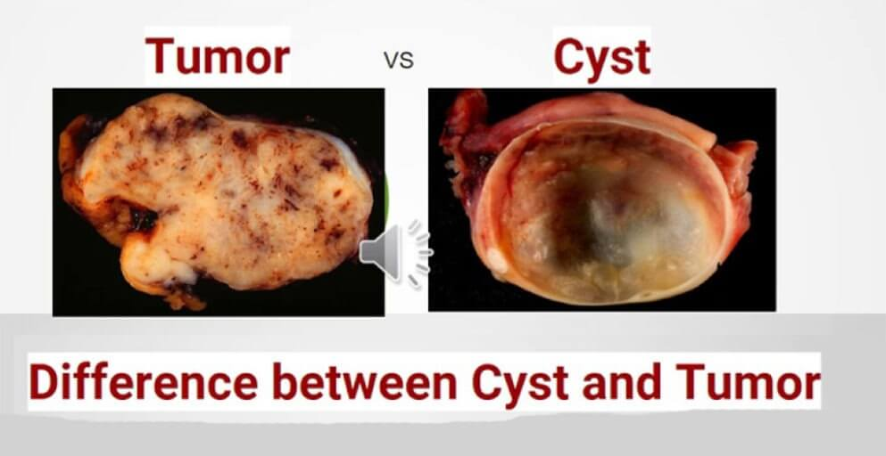 cancer benign tumour cyst)