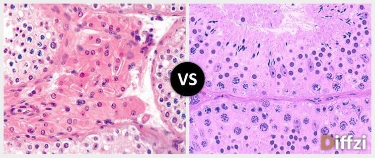 Leydig Cells vs. Sertoli Cells