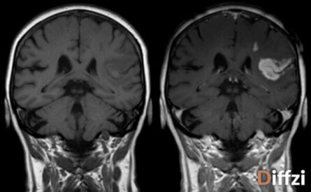 MRI with Contrast vs. MRI without Contrast