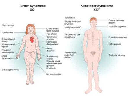 Klinefelter Syndrome vs. Turner Syndrome