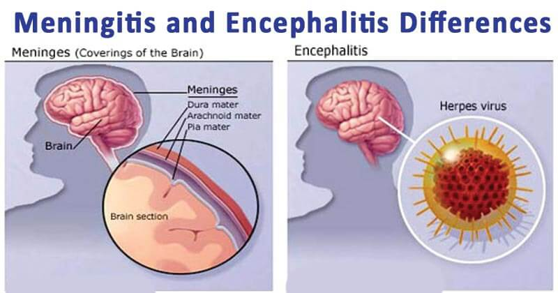 Ca neurologist treating adult rubella encephalitis