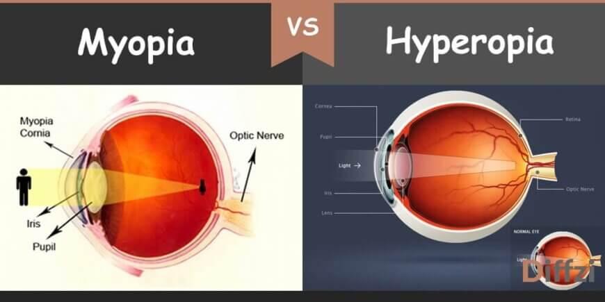 ce este hyperopia și miopia