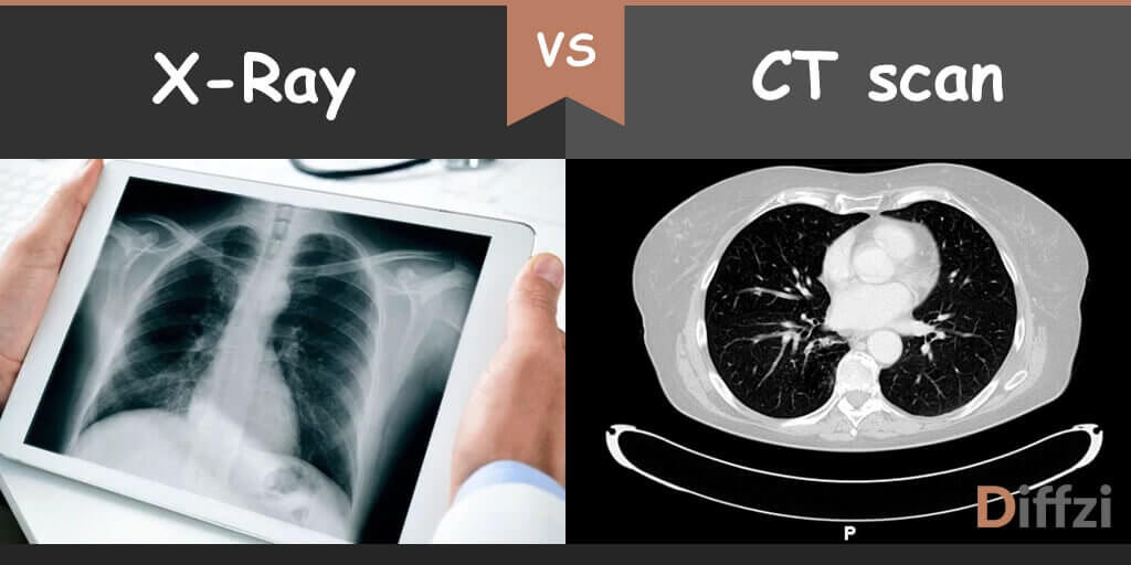 x ray vs ct scan