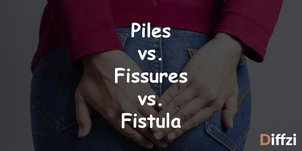 Piles vs. Fissures vs. Fistula