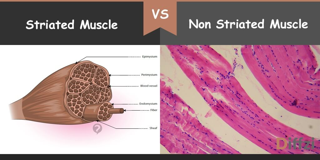 striated muscle vs non striated muscle