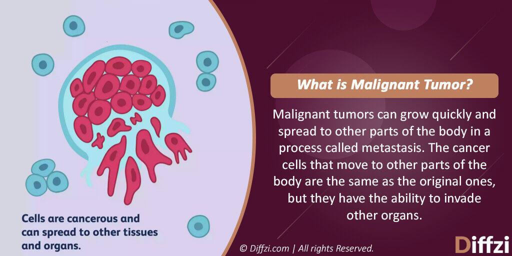 Malignant Tumor